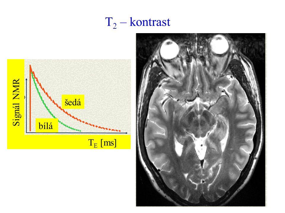 T 2 – kontrast šedá bílá T E [ms] Sign á l NMR