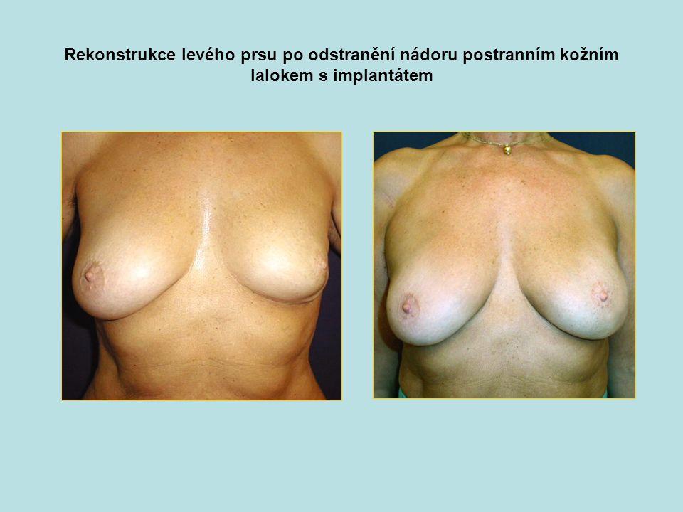 Rekonstrukce levého prsu po odstranění nádoru postranním kožním lalokem s implantátem