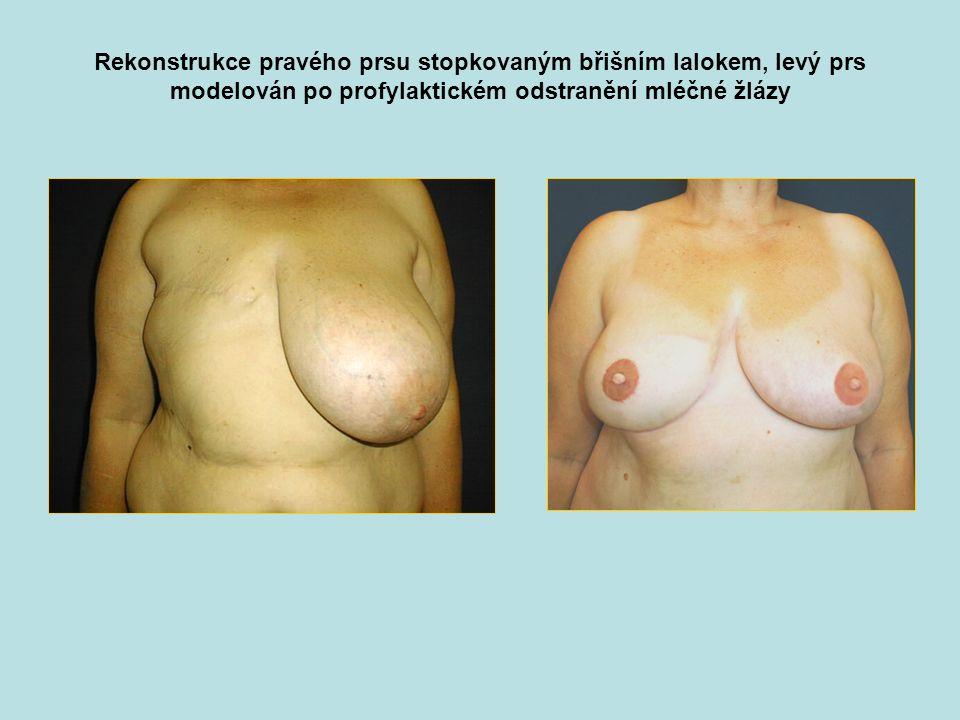 Rekonstrukce pravého prsu stopkovaným břišním lalokem, levý prs modelován po profylaktickém odstranění mléčné žlázy