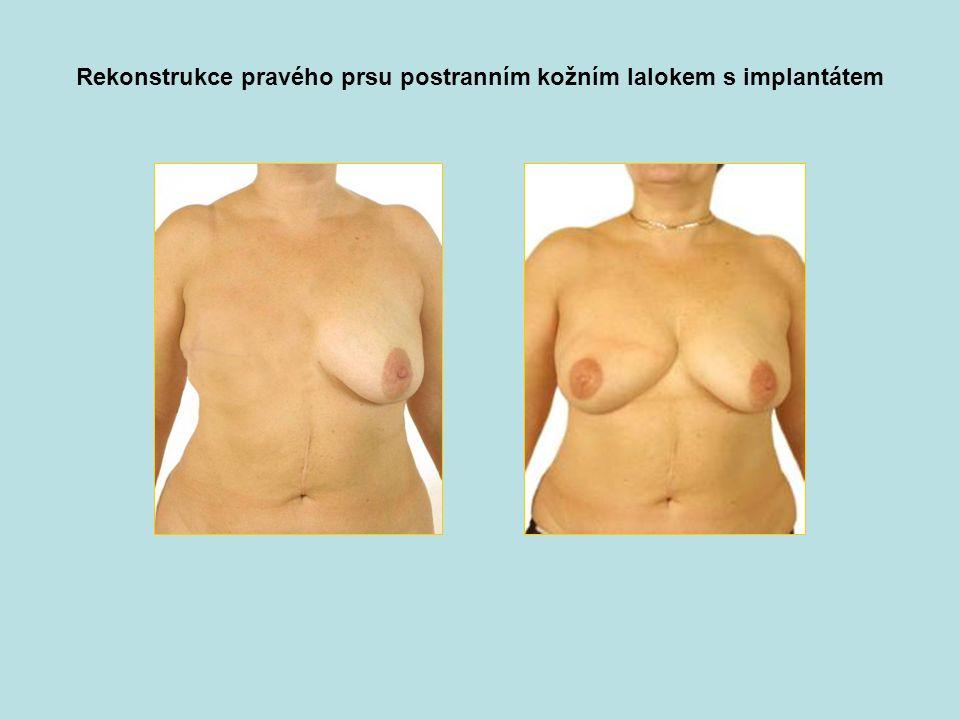 Rekonstrukce pravého prsu postranním kožním lalokem s implantátem