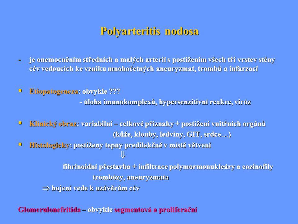 Polyarteritis nodosa - je onemocněním středních a malých arterií s postižením všech tří vrstev stěny cév vedoucích ke vzniku mnohočetných aneuryzmat,