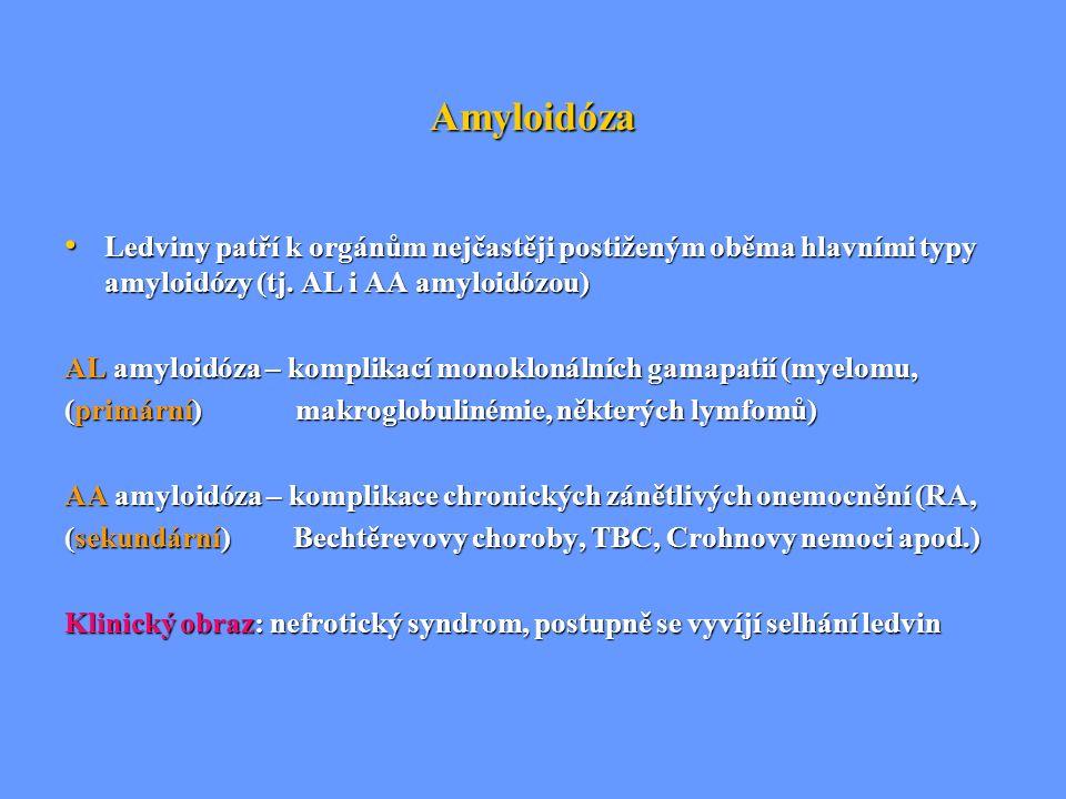 Amyloidóza Ledviny patří k orgánům nejčastěji postiženým oběma hlavními typy amyloidózy (tj. AL i AA amyloidózou) Ledviny patří k orgánům nejčastěji p