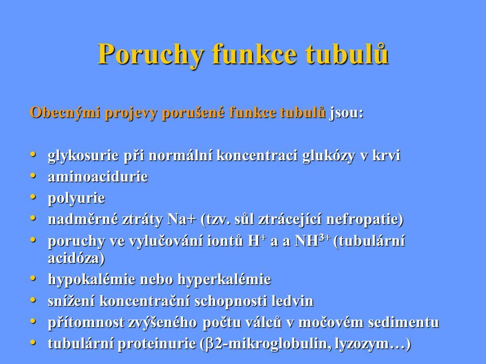 Poruchy funkce tubulů Obecnými projevy porušené funkce tubulů jsou: glykosurie při normální koncentraci glukózy v krvi glykosurie při normální koncent