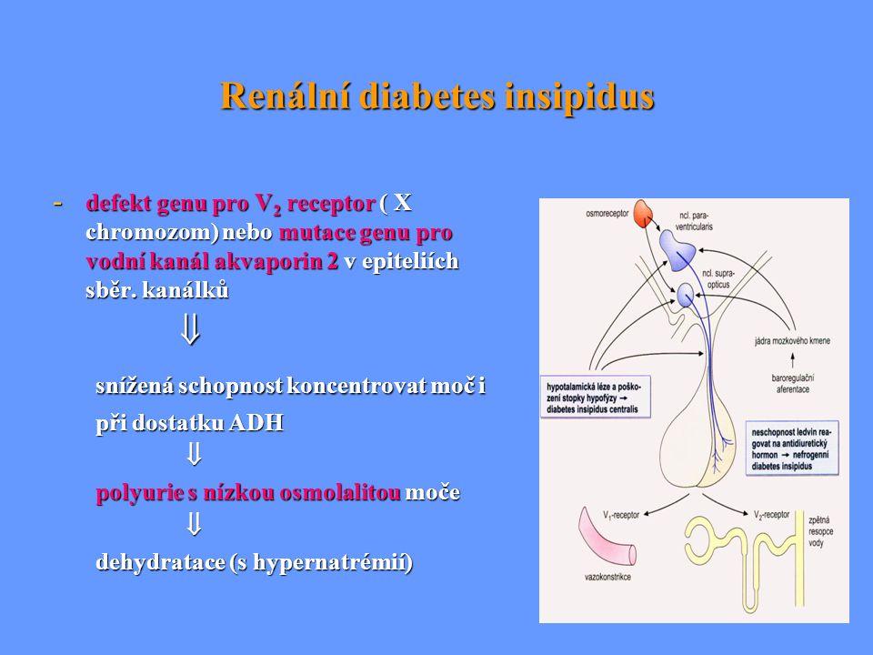 Renální diabetes insipidus - defekt genu pro V 2 receptor ( X chromozom) nebo mutace genu pro vodní kanál akvaporin 2 v epiteliích sběr. kanálků  sní
