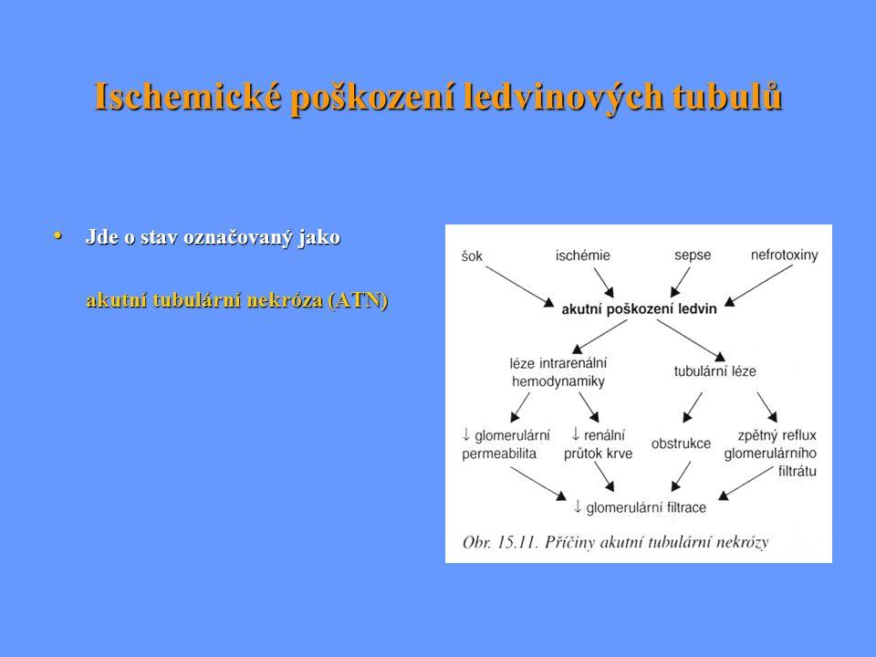 Ischemické poškození ledvinových tubulů Jde o stav označovaný jako Jde o stav označovaný jako akutní tubulární nekróza (ATN) akutní tubulární nekróza