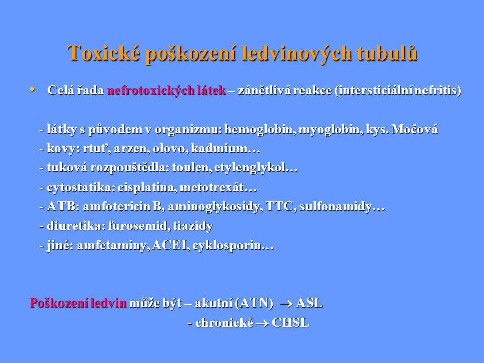 Toxické poškození ledvinových tubulů Celá řada nefrotoxických látek – zánětlivá reakce (intersticiální nefritis) Celá řada nefrotoxických látek – záně