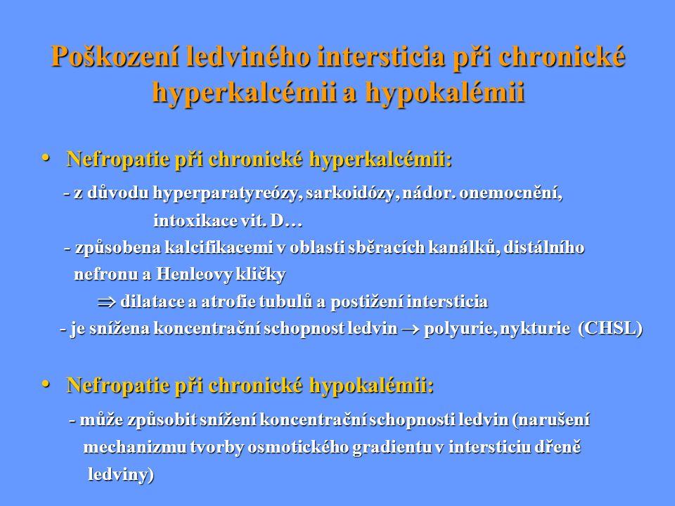 Poškození ledviného intersticia při chronické hyperkalcémii a hypokalémii Nefropatie při chronické hyperkalcémii: Nefropatie při chronické hyperkalcém