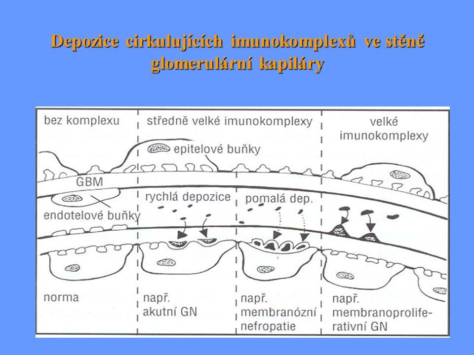 Tři typy RPGN  GN s tvorbou protilátek (IgG, IgA) proti bazální membráně (anti-GBM) - lineární depozita Ig - lineární depozita Ig (+ alveolokapilární síť) Goodpastuerův sy (+ alveolokapilární síť) Goodpastuerův sy  GN s granulárními depozity Ig a komplementu - vznik srpků znamená komplikaci primárně endokapilárně proliferativní GN (u IgA nefropatie, SLE, akutní GN apod.) - vznik srpků znamená komplikaci primárně endokapilárně proliferativní GN (u IgA nefropatie, SLE, akutní GN apod.)  GN imunofluorescenčně negativní - ANCA pt.