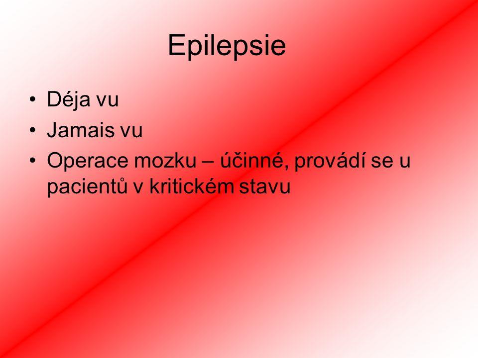 Epilepsie Déja vu Jamais vu Operace mozku – účinné, provádí se u pacientů v kritickém stavu