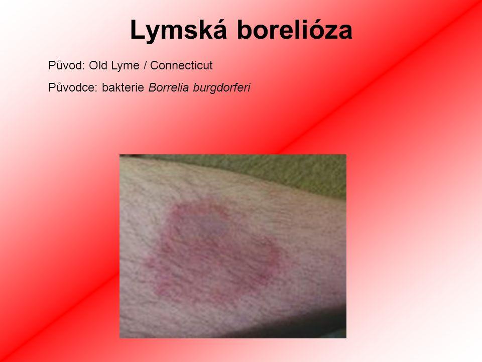 Lymská borelióza Antropozoonóza = typický přenos ze zvěřátka na člověka Klíšťata, vzácně i krvelačný hmyz Erythema migrans - červená skvrna s blednoucím středem v okolí kousnutí Horečka, bolesti svalů, únava (podobné chřipce) Když neléčeno -> NS, srdce, klouby