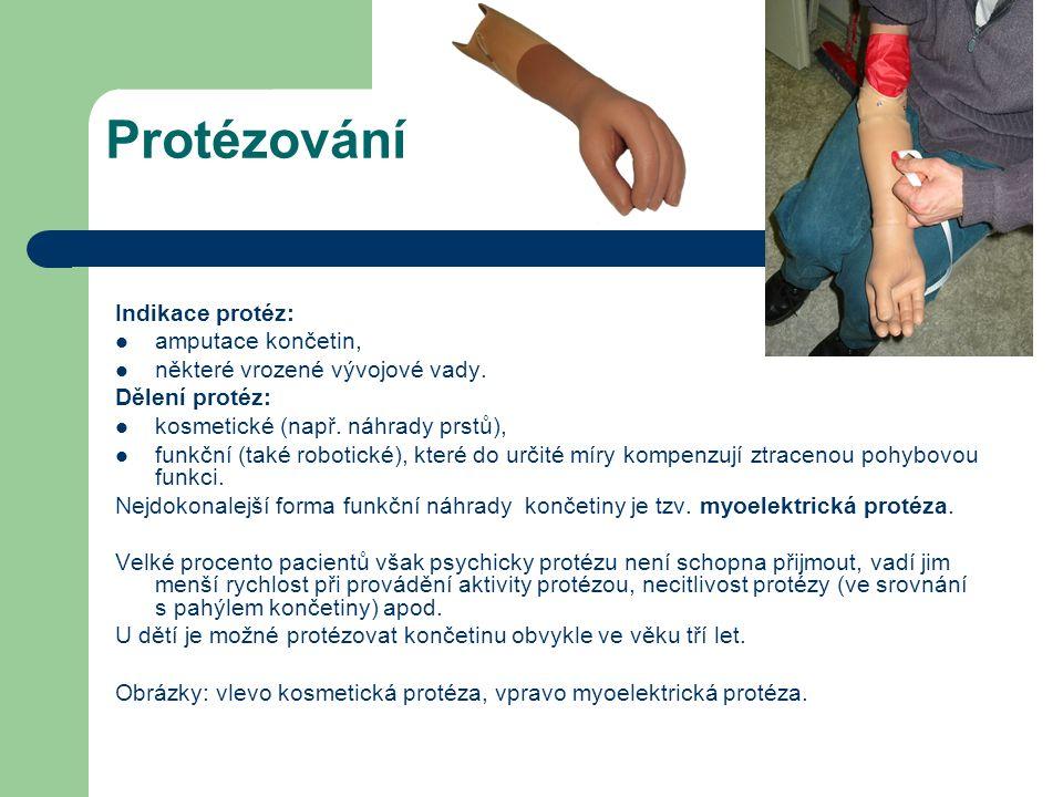 Protézování Indikace protéz: amputace končetin, některé vrozené vývojové vady. Dělení protéz: kosmetické (např. náhrady prstů), funkční (také robotick