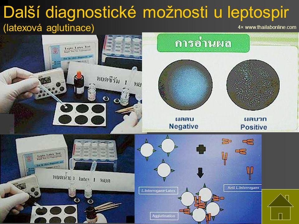 Další diagnostické možnosti u leptospir (latexová aglutinace) 4× www.thailabonline.com