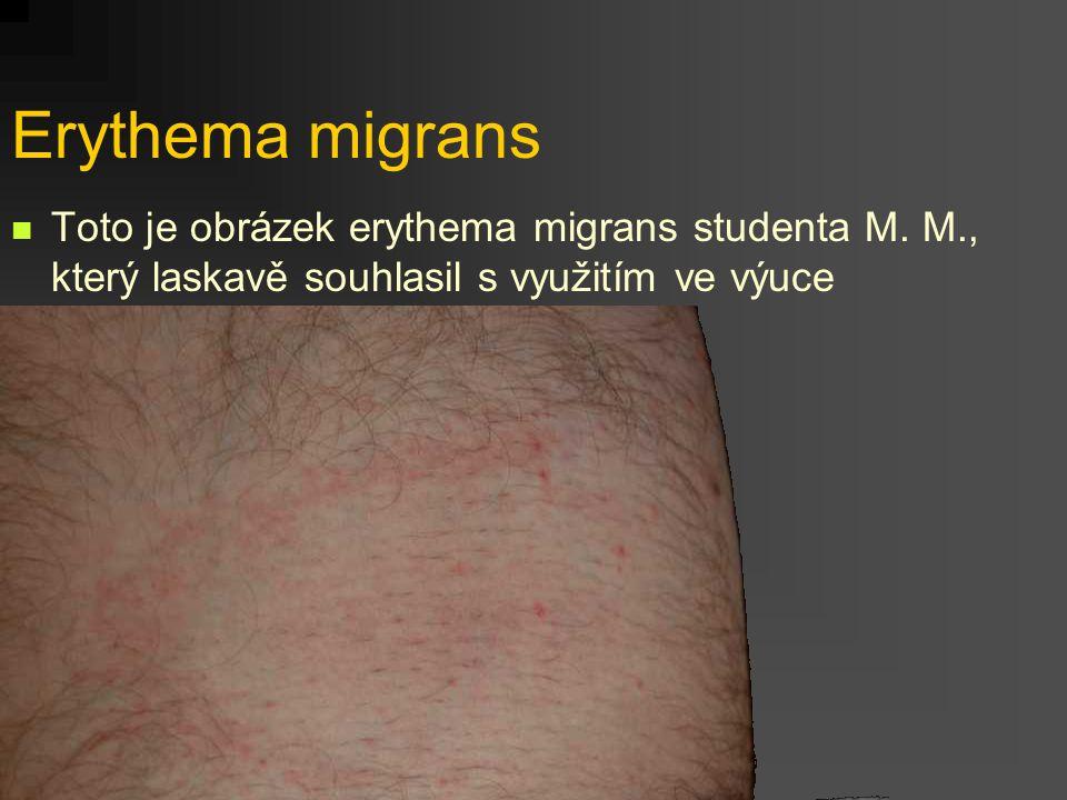 Erythema migrans Toto je obrázek erythema migrans studenta M. M., který laskavě souhlasil s využitím ve výuce