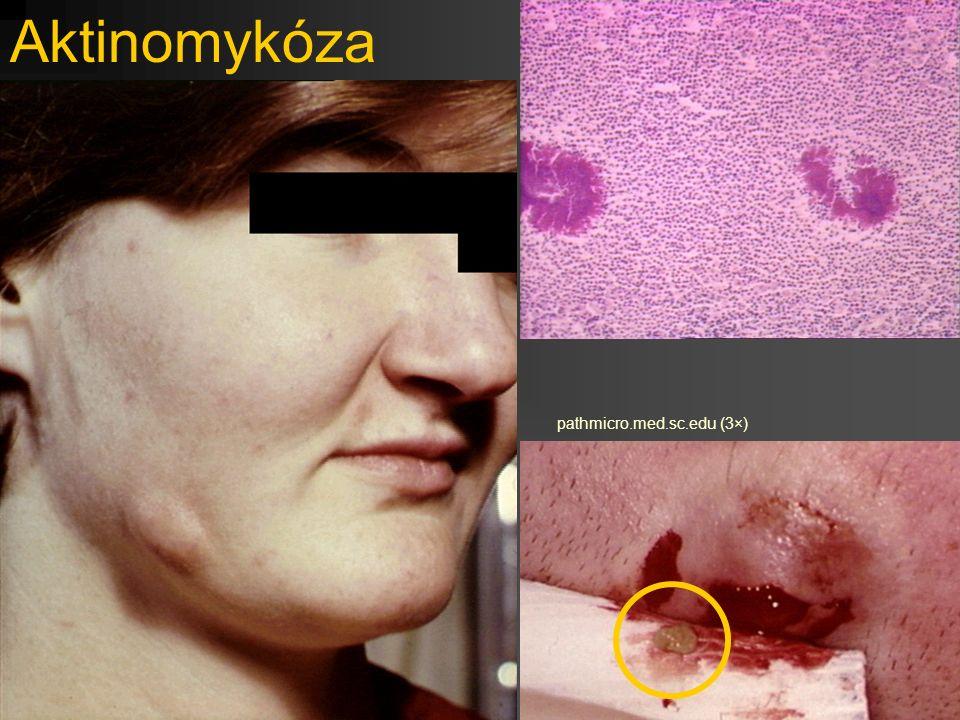 Aktinomykóza pathmicro.med.sc.edu (3×)