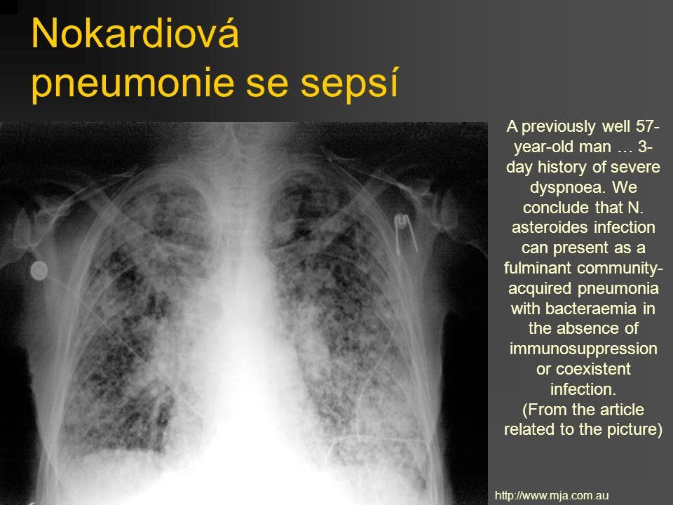 Nokardiová pneumonie se sepsí A previously well 57- year-old man … 3- day history of severe dyspnoea. We conclude that N. asteroides infection can pre