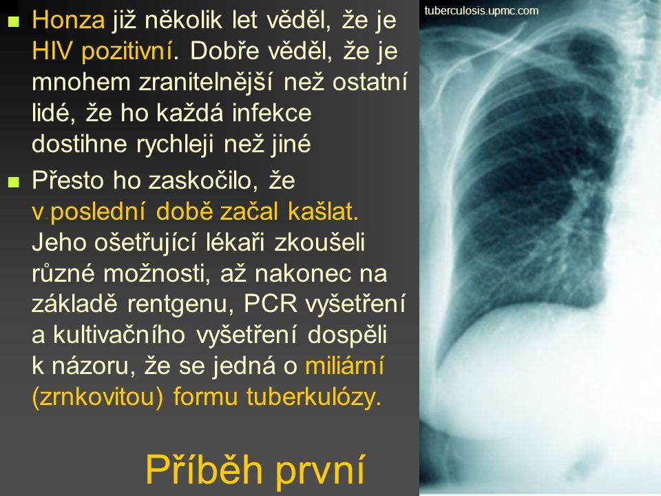 Viníkem zde bylo Mycobacterium tuberculosis, i když TBC může způsobovat i například Mycobacterium bovis.