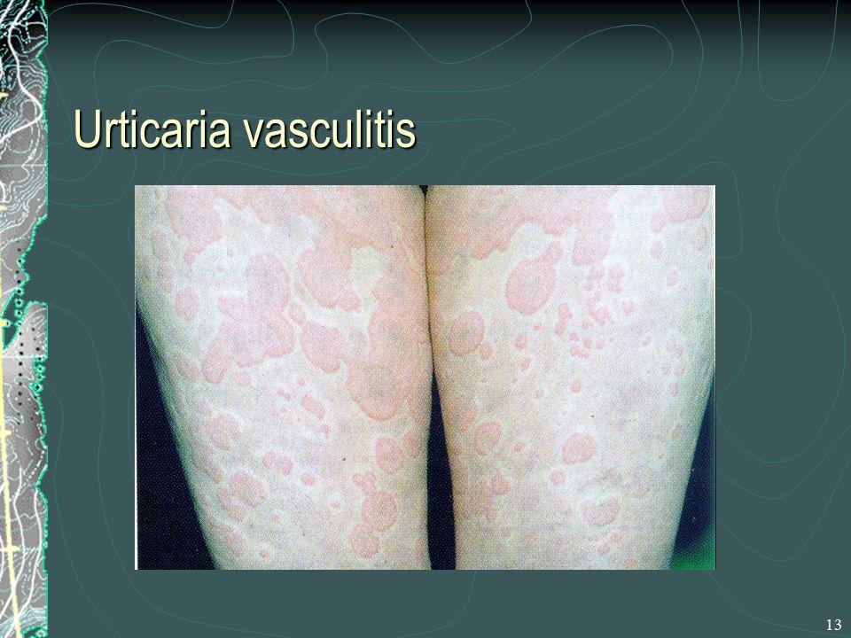 13 Urticaria vasculitis