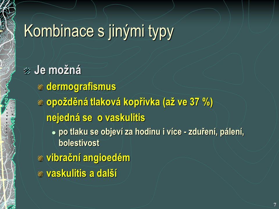 18 Přehled nesedativních antihistaminik astemizolterfenadincetirizinloratadin Maximální působení Po 1-2 hod.