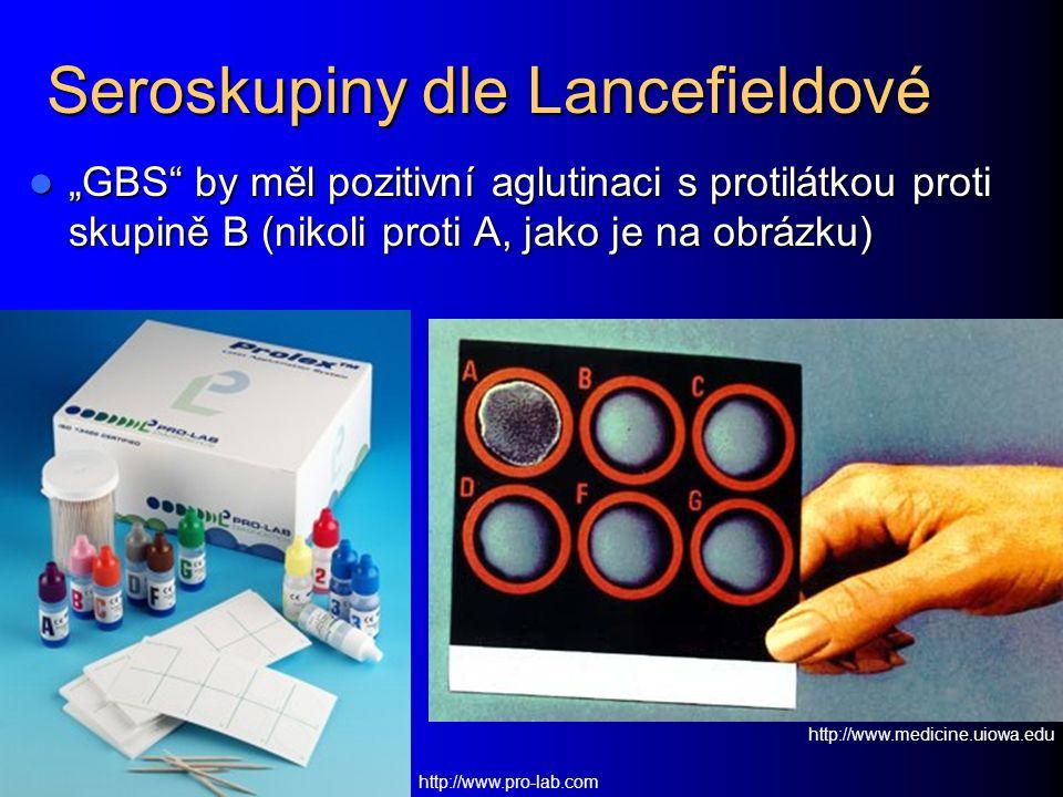 """Seroskupiny dle Lancefieldové """"GBS by měl pozitivní aglutinaci s protilátkou proti skupině B (nikoli proti A, jako je na obrázku) """"GBS by měl pozitivní aglutinaci s protilátkou proti skupině B (nikoli proti A, jako je na obrázku) http://www.pro-lab.com http://www.medicine.uiowa.edu"""