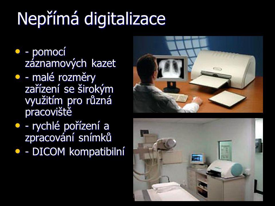 Nepřímá digitalizace - pomocí záznamových kazet - pomocí záznamových kazet - malé rozměry zařízení se širokým využitím pro různá pracoviště - malé rozměry zařízení se širokým využitím pro různá pracoviště - rychlé pořízení a zpracování snímků - rychlé pořízení a zpracování snímků - DICOM kompatibilní - DICOM kompatibilní
