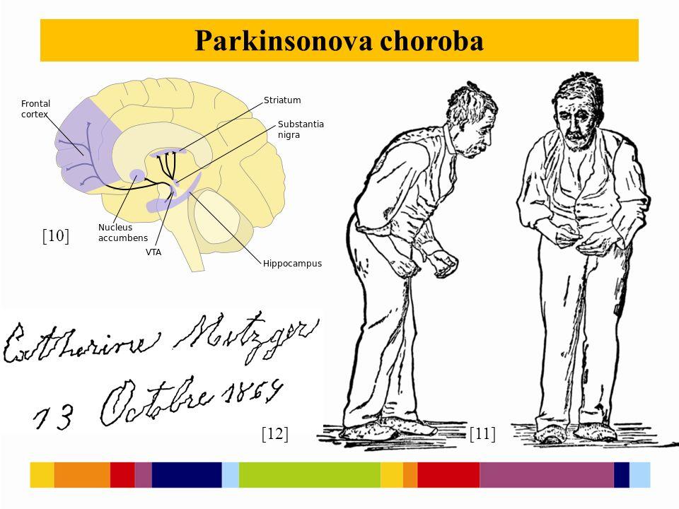 Parkinsonova choroba [12][11] [10]