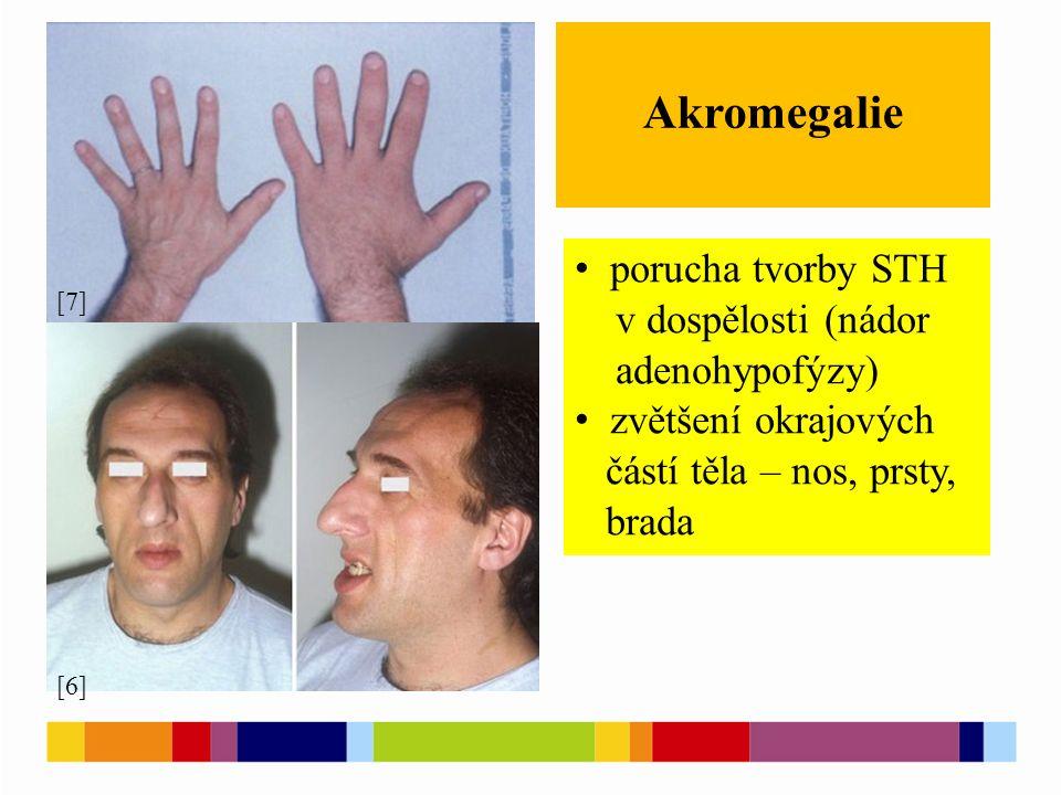 Akromegalie [6] [7] porucha tvorby STH v dospělosti (nádor adenohypofýzy) zvětšení okrajových částí těla – nos, prsty, brada