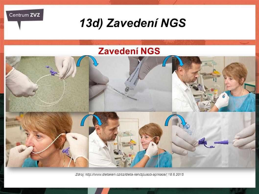 Zavedení NGS Zdroj: http://www.dietaken.cz/cz/dieta-ken/zpusob-aplikace/; 18.6.2015 13d) Zavedení NGS