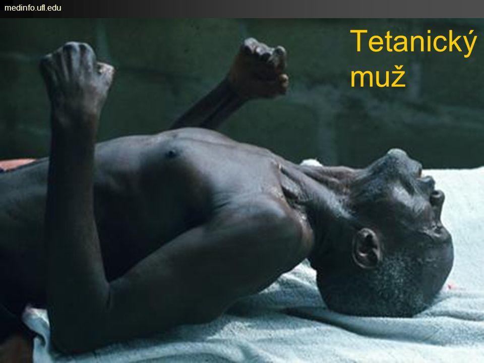 Tetanický muž medinfo.ufl.edu