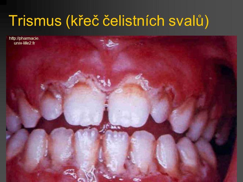 Trismus (křeč čelistních svalů) http://pharmacie. univ-lille2.fr