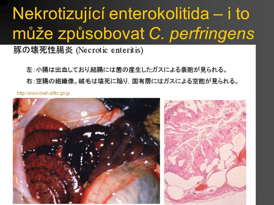Nekrotizující enterokolitida – i to může způsobovat C. perfringens http://www.niah.affrc.go.jp
