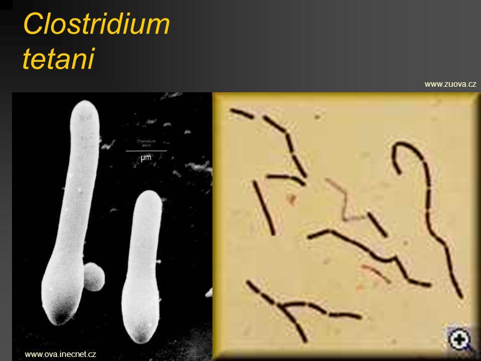 Clostridium tetani www.ova.inecnet.cz www.zuova.cz