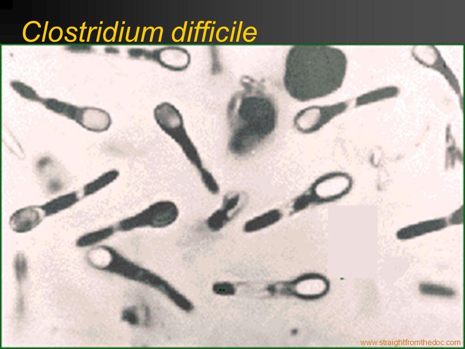 www.straightfromthedoc.com Clostridium difficile