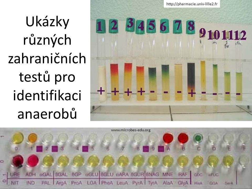 Ukázky různých zahraničních testů pro identifikaci anaerobů http://pharmacie.univ-lille2.fr www.microbes-edu.org