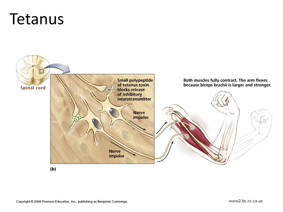 Tetanus www2.bc.cc.ca.us