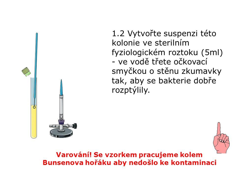 1.3 Ručně vytvořenou suspenzi zhomogenizujte mírným kroužením a poklepáváním zkumavky.