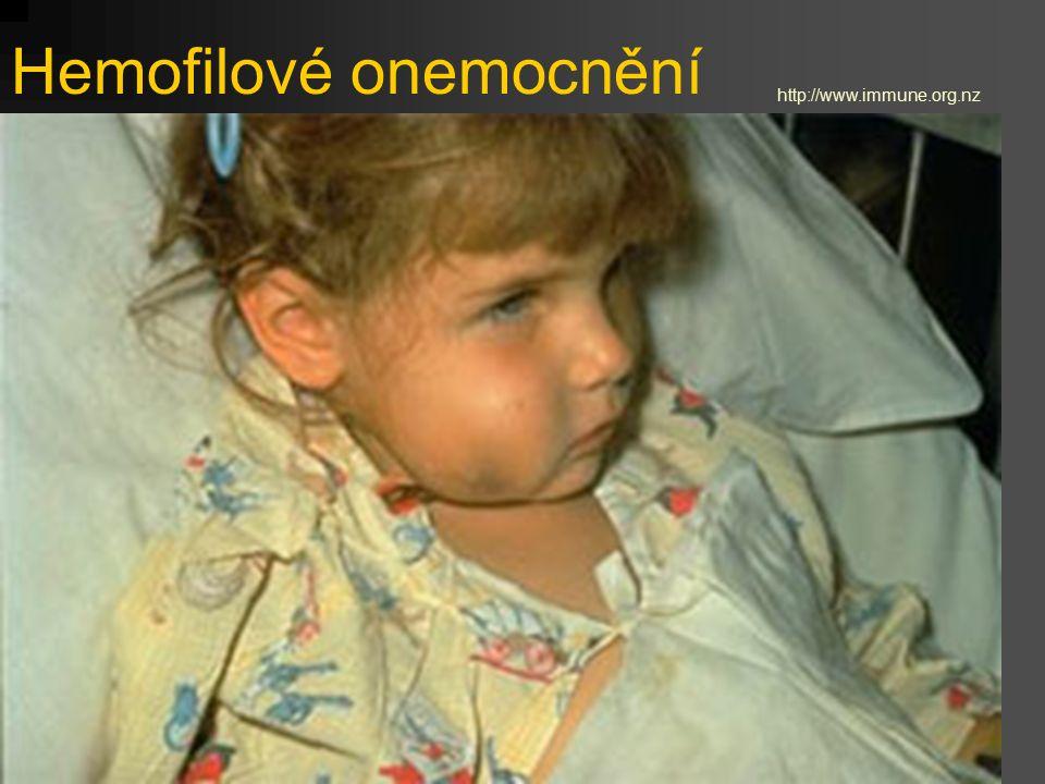 Hemofilové onemocnění http://www.immune.org.nz