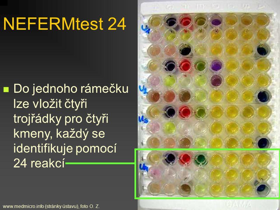 Do jednoho rámečku lze vložit čtyři trojřádky pro čtyři kmeny, každý se identifikuje pomocí 24 reakcí NEFERMtest 24 www.medmicro.info (stránky ústavu)