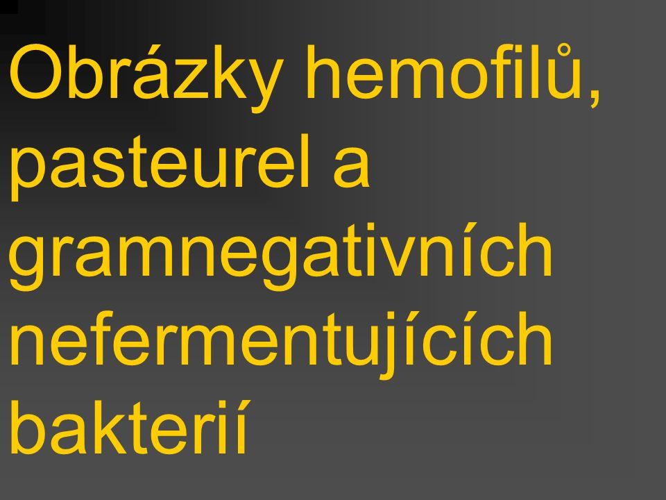 Obrázky hemofilů, pasteurel a gramnegativních nefermentujících bakterií