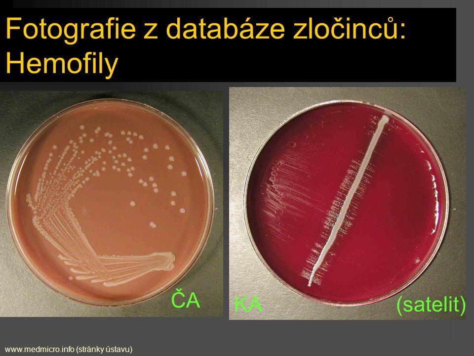 Fotografie z databáze zločinců: Hemofily ČA KA (satelit) www.medmicro.info (stránky ústavu)
