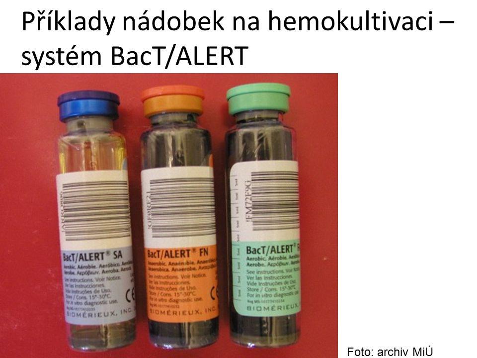 Příklady nádobek na hemokultivaci – systém BacT/ALERT Foto: archiv MiÚ