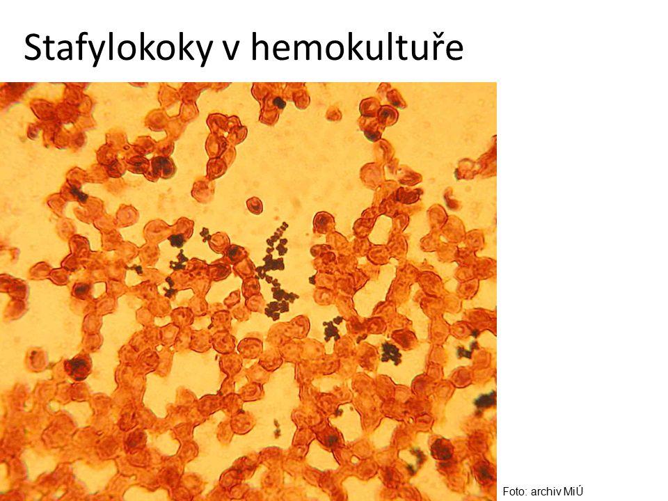 Stafylokoky v hemokultuře Foto: archiv MiÚ