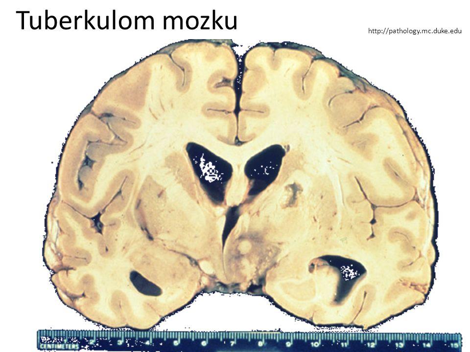 Tuberkulom mozku http://pathology.mc.duke.edu