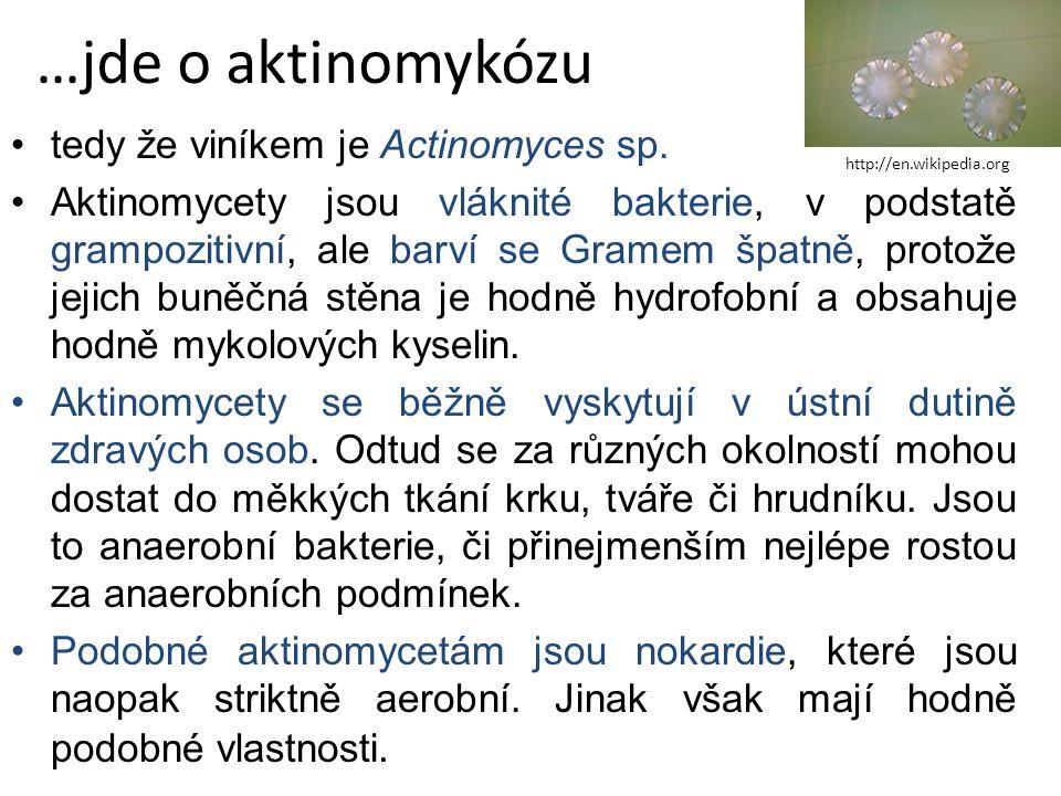 tedy že viníkem je Actinomyces sp.