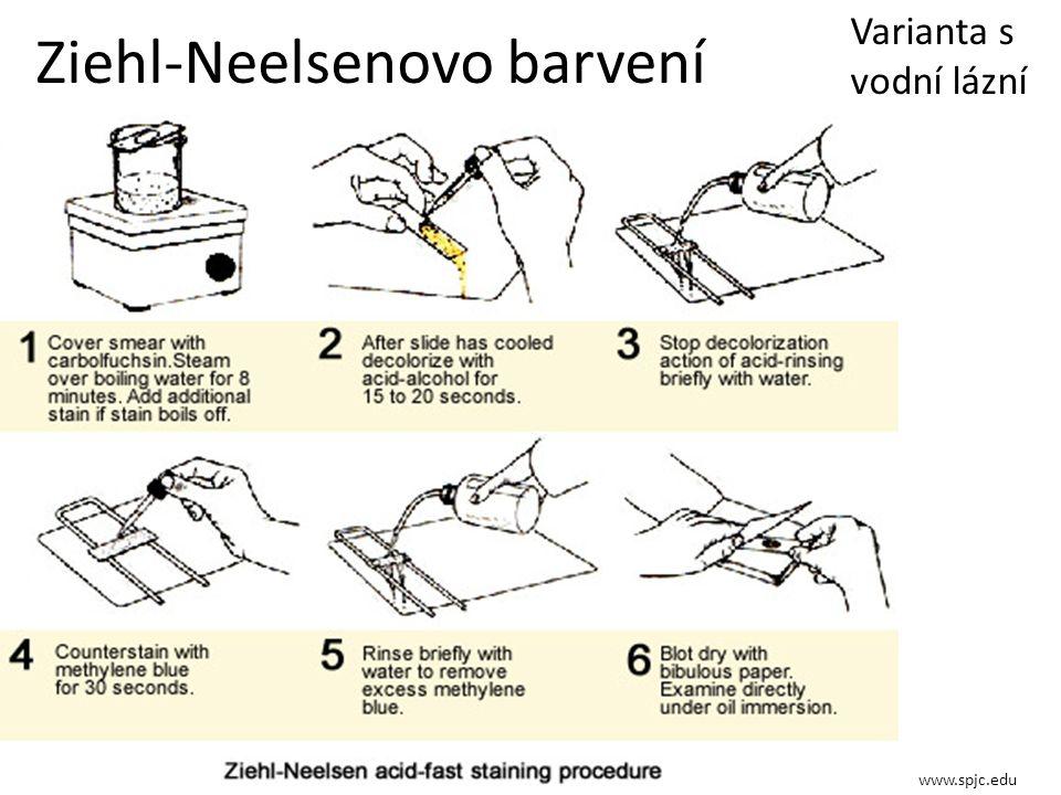 Ziehl-Neelsenovo barvení www.spjc.edu Varianta s vodní lázní