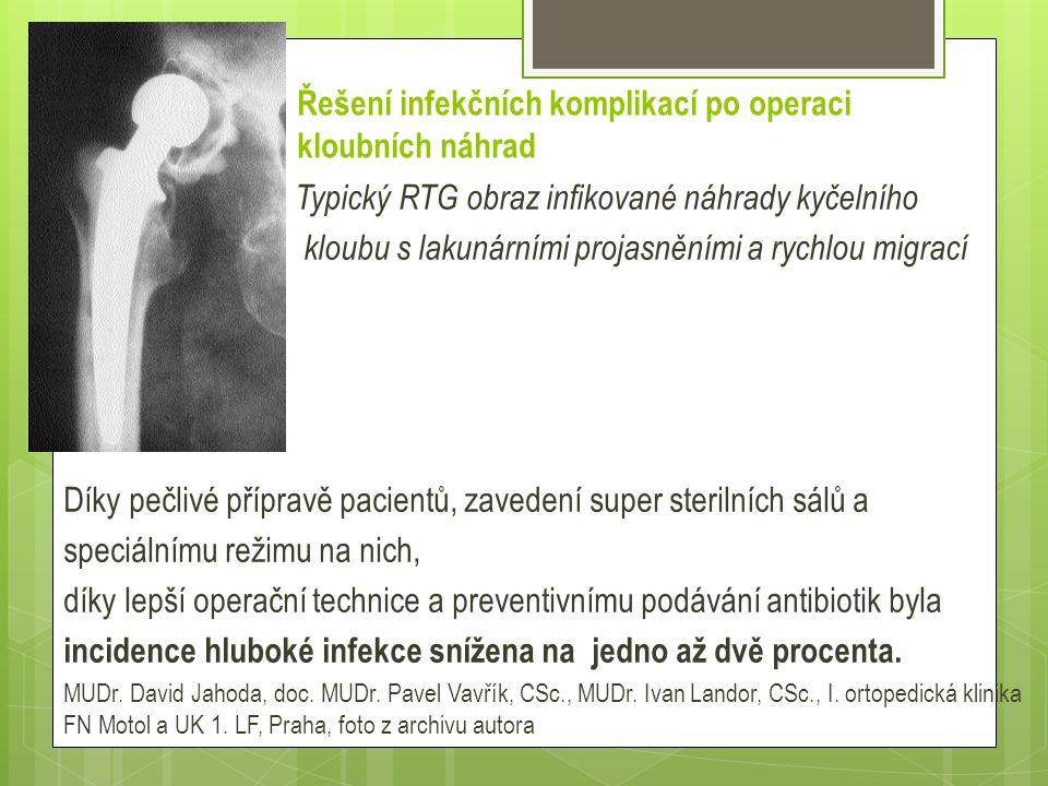 Řešení infekčních komplikací po operaci kloubních náhrad  Typický RTG obraz infikované náhrady kyčelního  kloubu s lakunárními projasněními a rychlo