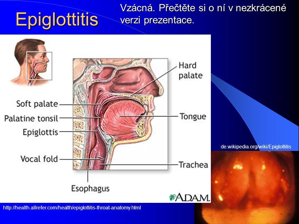 Epiglottitis http://health.allrefer.com/health/epiglottitis-throat-anatomy.html de.wikipedia.org/wiki/Epiglottitis Vzácná. Přečtěte si o ní v nezkráce