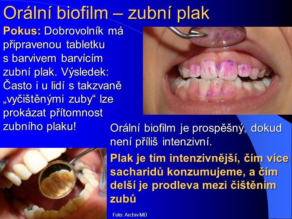 """Orální biofilm – zubní plak Pokus: Dobrovolník má připravenou tabletku s barvivem barvícím zubní plak. Výsledek: Často i u lidí s takzvaně """"vyčištěným"""