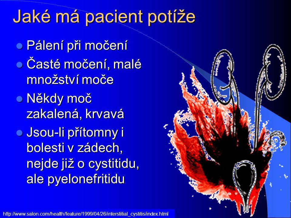 Jaké má pacient potíže Pálení při močení Pálení při močení Časté močení, malé množství moče Časté močení, malé množství moče Někdy moč zakalená, krvav