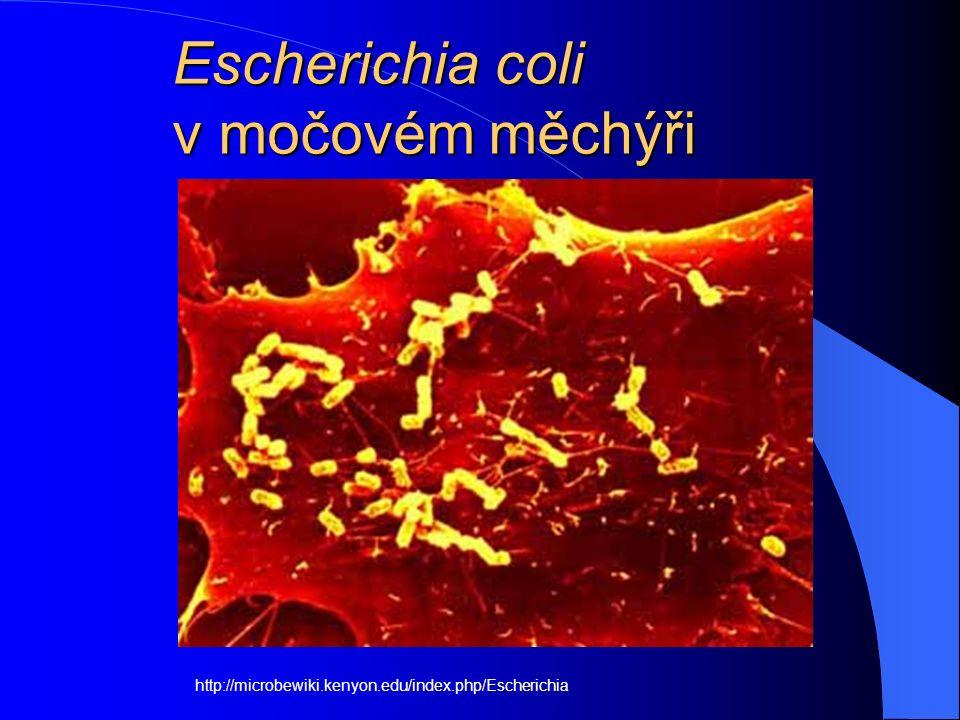 Escherichia coli v močovém měchýři http://microbewiki.kenyon.edu/index.php/Escherichia