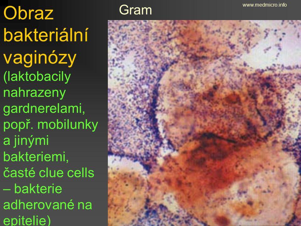 Obraz bakteriální vaginózy (laktobacily nahrazeny gardnerelami, popř. mobilunky a jinými bakteriemi, časté clue cells – bakterie adherované na epiteli